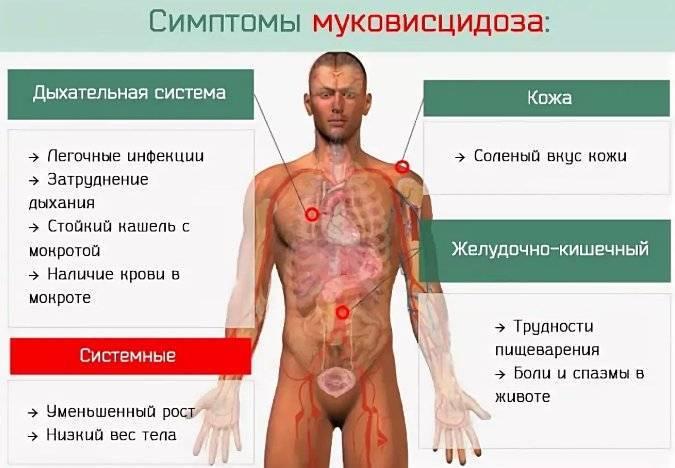 Муковисцидоз у детей - симптомы болезни, профилактика и лечение муковисцидоза у детей, причины заболевания и его диагностика на eurolab