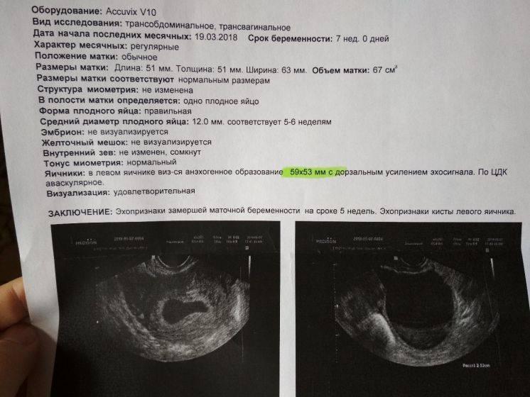Беременность 5-6 недель. первые признаки, развитие малыша. узи. размеры плодного яйца