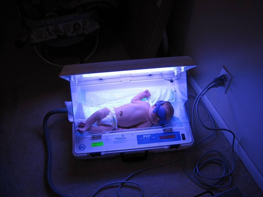 Когда у малыша пройдет младенческая желтуха? | детская городская поликлиника № 32