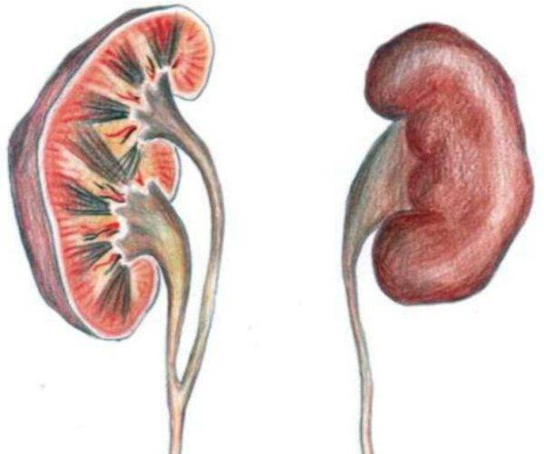 Если при ультразвуковом исследовании найдено расширение почечных лоханок (пиелоэктазия)