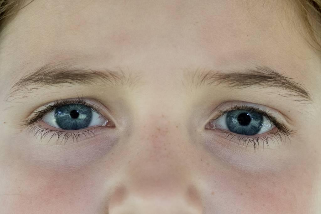 Разный размер зрачков — патология или физиологическая особенность?