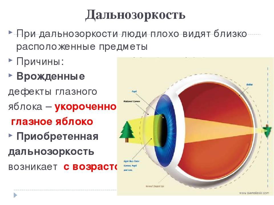 Упражнения при дальнозоркости у детей - энциклопедия ochkov.net