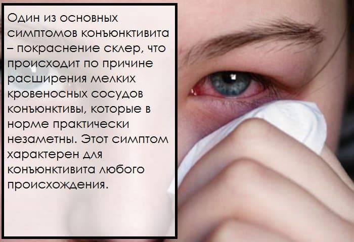 Покраснение глаз: основные причины и заболевания, вызывающие покраснение склеры. когда при покраснении глаз необходимо обращаться к врачу