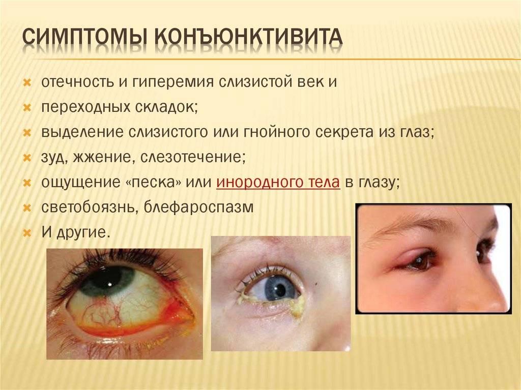 Вирусный конъюнктивит у детей: лечение заболевания глаз, симптомы с фото