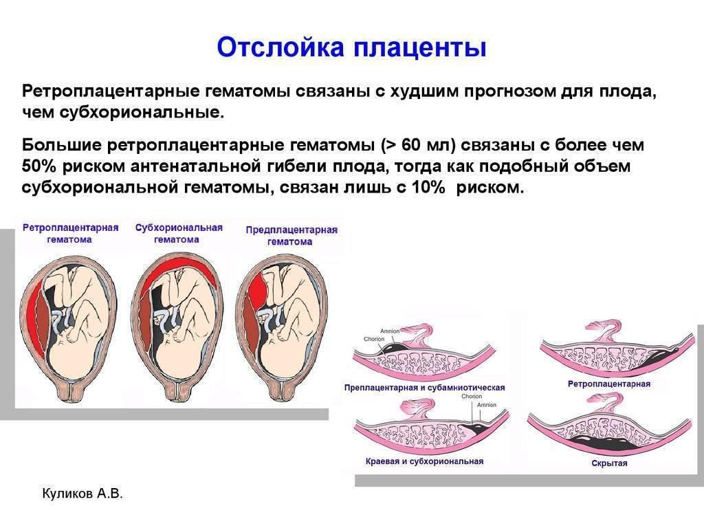 Гипоплазия плаценты при беременности: что это такое и чем грозит для плода?