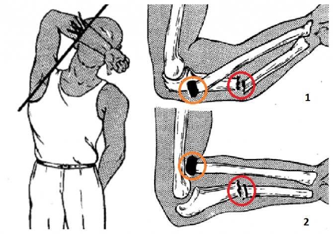 Ушиб или перелом: как отличить? – напоправку