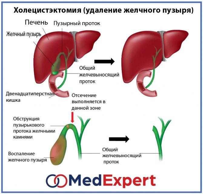Дискинезии желчевыводящих путей у детей   компетентно о здоровье на ilive