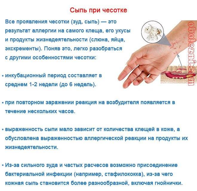 Сыпь у подростков: лечение, диагностика, лечение