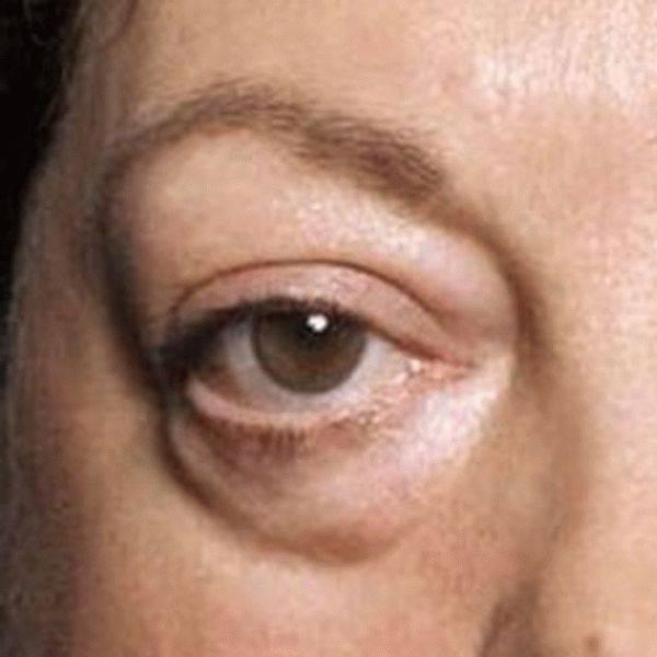 Мушки перед глазами: причины, лечение и профилактика