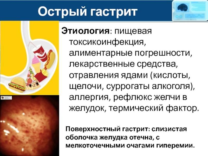 Хронический гастрит и гастродуоденит