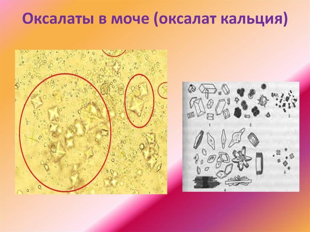 Оксалаты в моче у ребенка: причины паталогии, диагностика, лечение