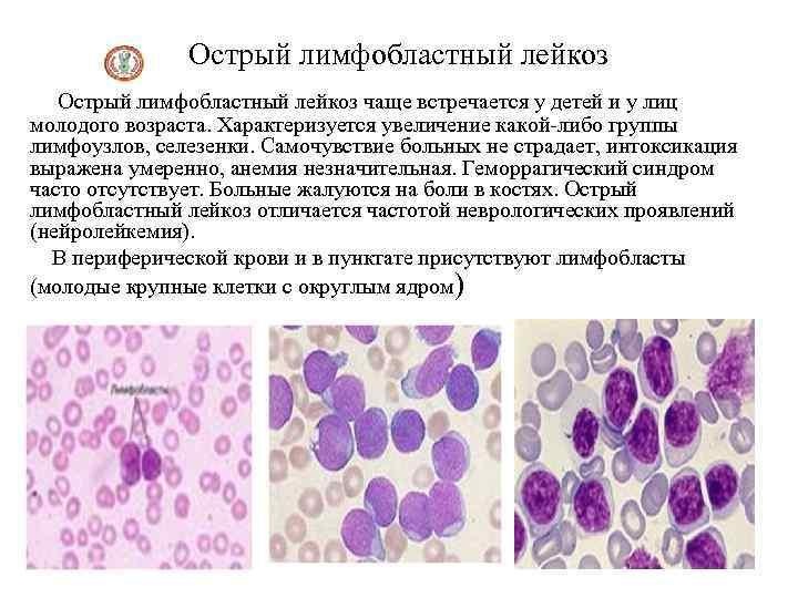 Острый лимфобластный лейкоз - симптомы болезни, профилактика и лечение острого лимфобластного лейкоза, причины заболевания и его диагностика на eurolab