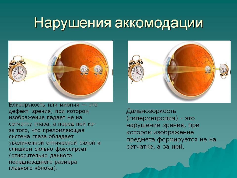 Нарушение аккомодации — что это такое? симптомы спазма глаза у детей