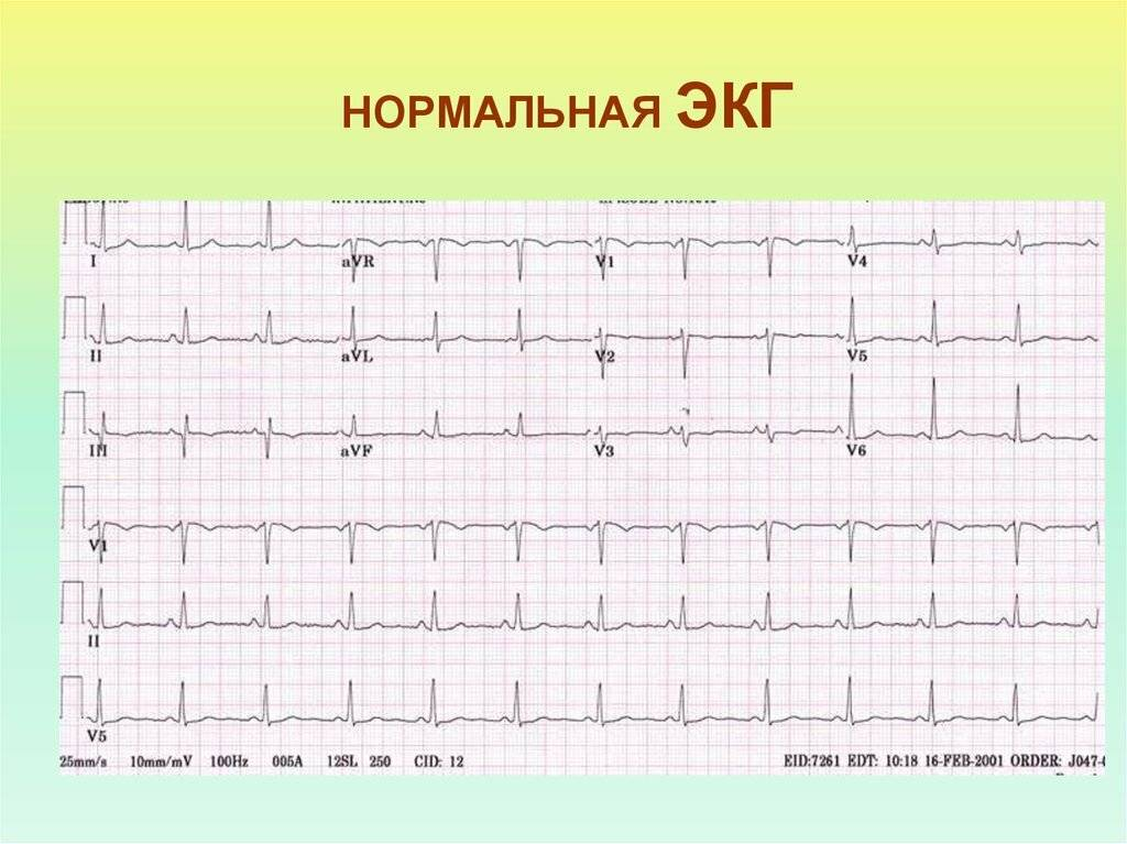 Расшифровка экг: наиболее важные показатели кардиограммы с примерами нарушений