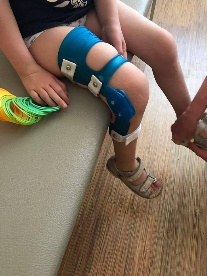 Ортопедо-хирургическое лечение контрактур и деформаций у детей с дцп - ортопедо-хирургическое отделение ецдкс мо