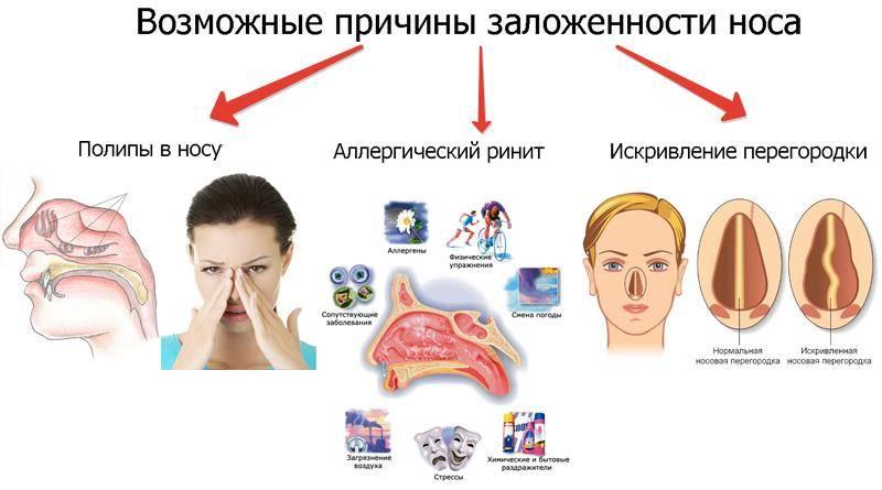 Постоянный насморк. лечение постоянного насморка