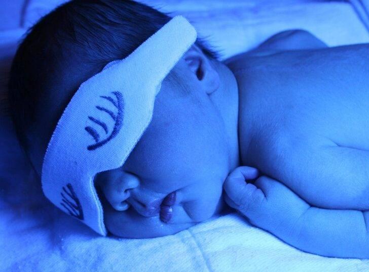 Желтуха новорожденных