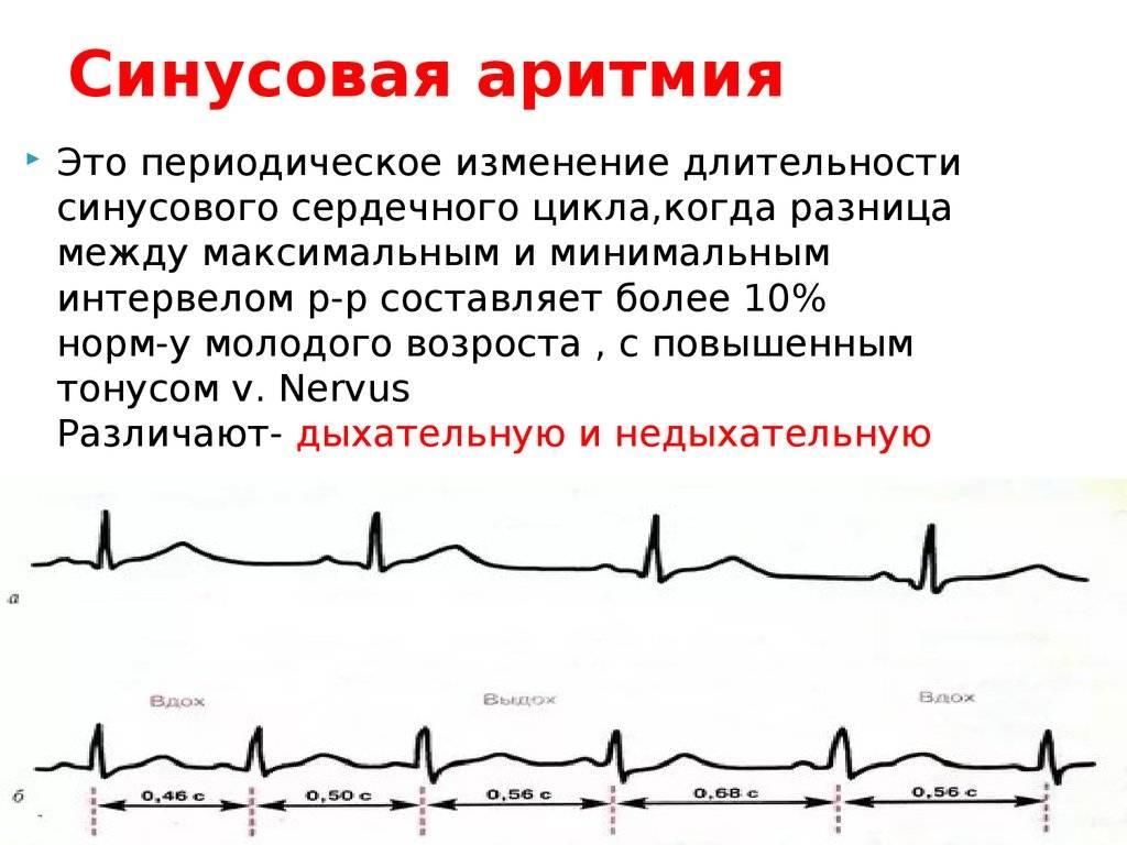 Аритмия у детей - признаки, причины, симптомы, лечение и профилактика - idoctor.kz