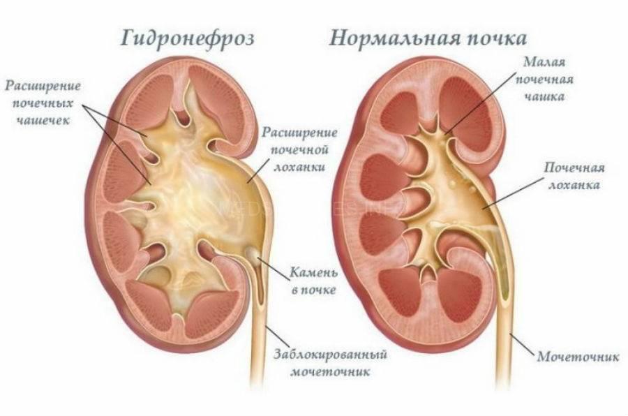Пиелоэктазия у детей — лечение, диагностика, симптомы и причины болезни | николаев в.в.