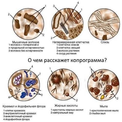 О чем говорит ваш кал: как по форме, цвету, внешнему виду и запаху стула определить болезнь
