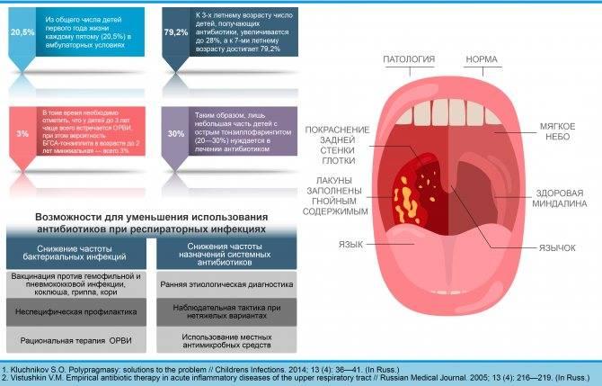 Симптомы и лечение воспаления носоглотки, как вылечить воспаление носоглотки