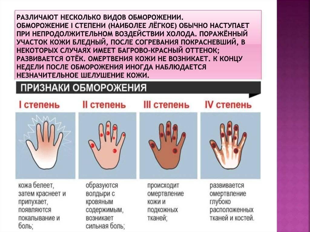 Первая помощь при обморожении: стадии, симптомы и признаки