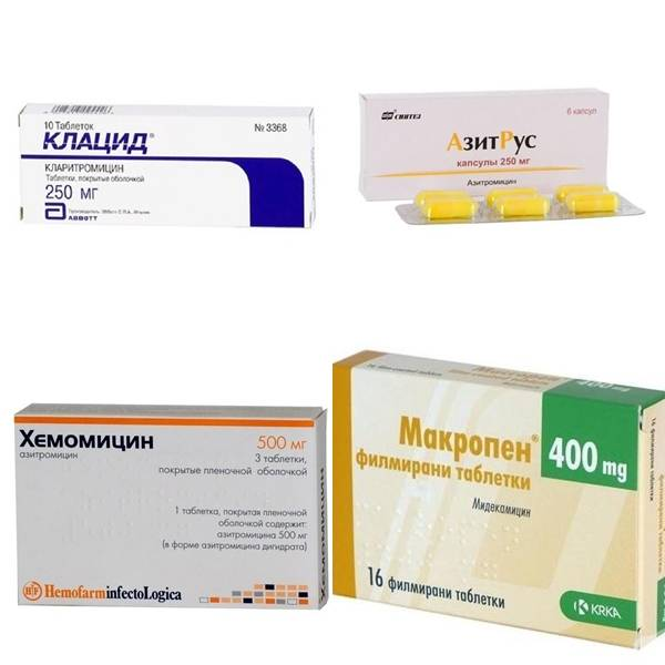 Стоит ли давать антибиотики при ангине?