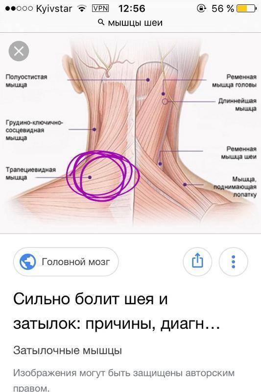 Боли в шее сзади у основания черепа | клиника здравствуй!