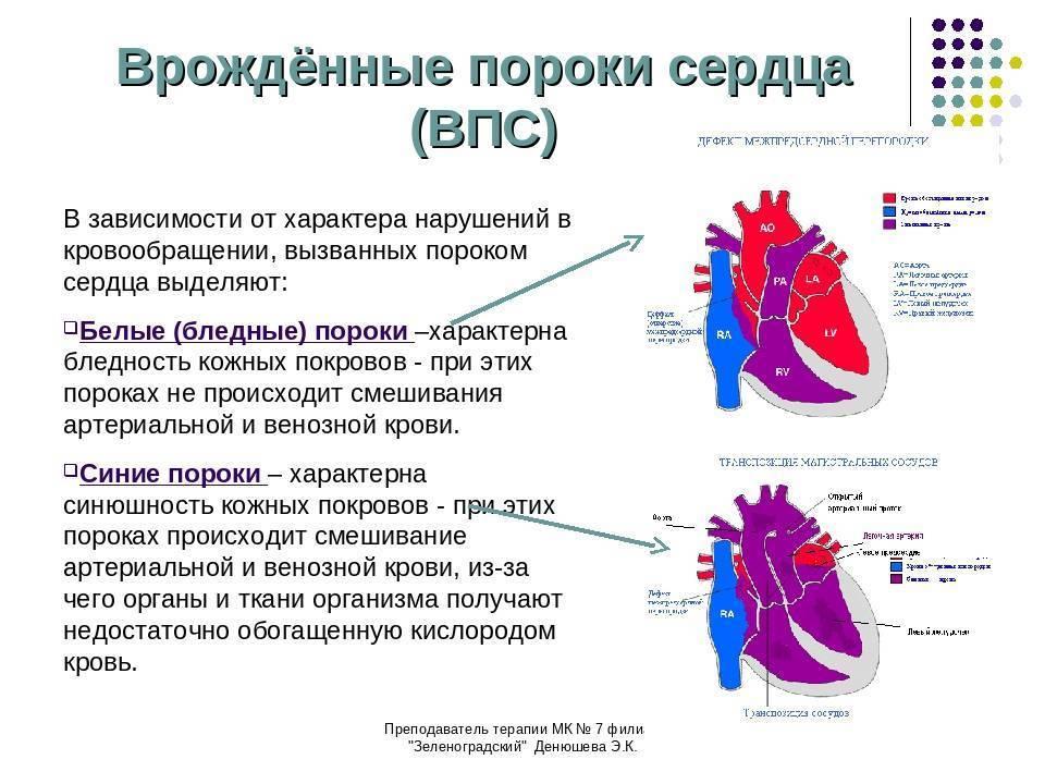 Врожденные пороки сердца (впс) у детей - симптомы болезни, профилактика и лечение врожденных пороков сердца (впс) у детей, причины заболевания и его диагностика на eurolab
