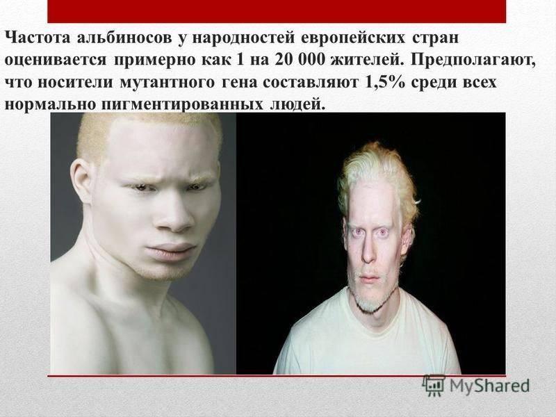 Альбинизм — википедия