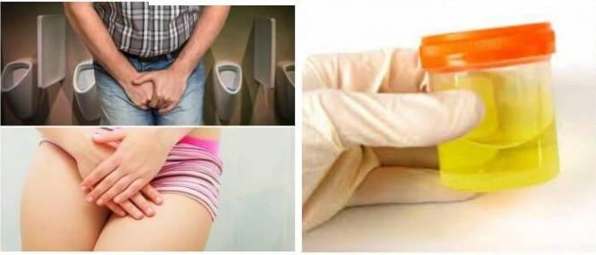 Частые позывы мочеиспускания у женщин с болью внизу живота, пояснице
