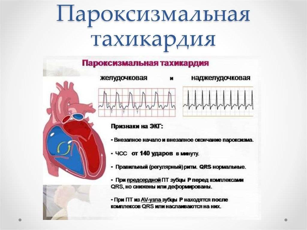 Нарушения сердечного ритма   кардиологический центр в санкт-петербурге