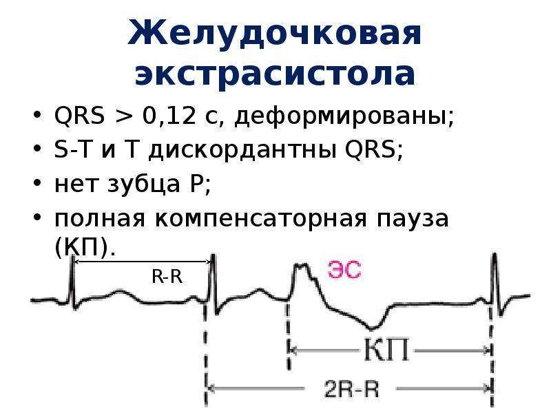 Экстрасистолия. информация для пациентов.
