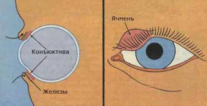 Ячмень и халязион. симптомы, диагностика и лечение.!