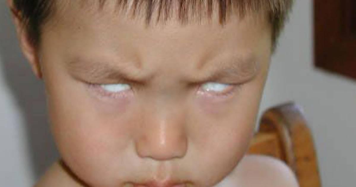 Новорожденный закатывает глаза когда засыпает и дергается: ребенок моргает во сне