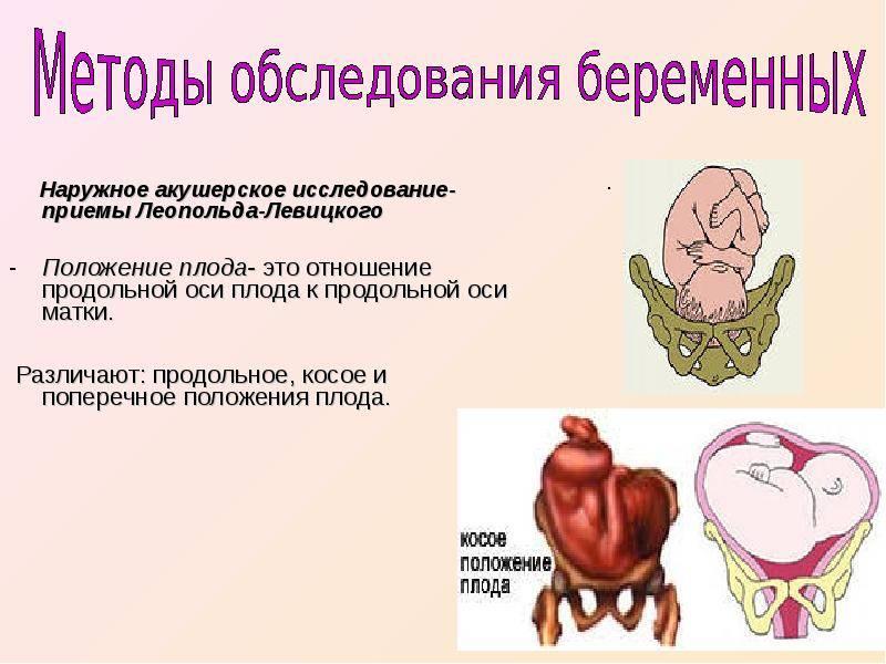 Тазовое предлежание плода: причины, симптомы, диагностика и лечение