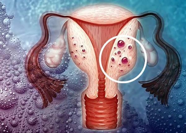 Аденомиоз матки: что это и как лечить?