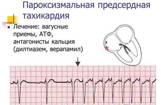 Синусовая тахикардия у ребенка: причины и симптомы патологии сердца, лечение и последствия