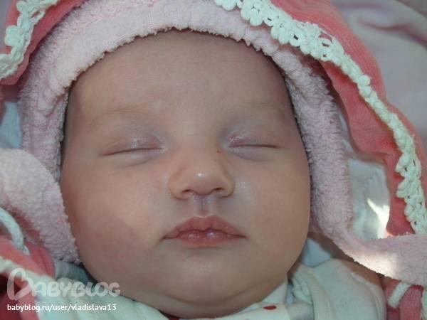 Почему у новорожденного синий носик. почему у грудничка стал синий носогубный треугольник