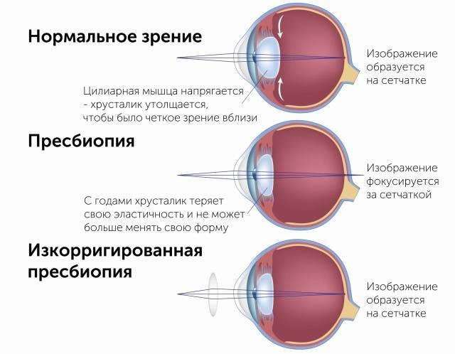 Упражнения для глаз при косоглазии - энциклопедия ochkov.net