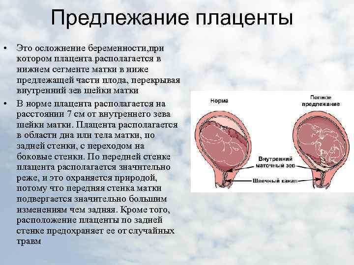 Расшифровка гинекологического узи | университетская клиника