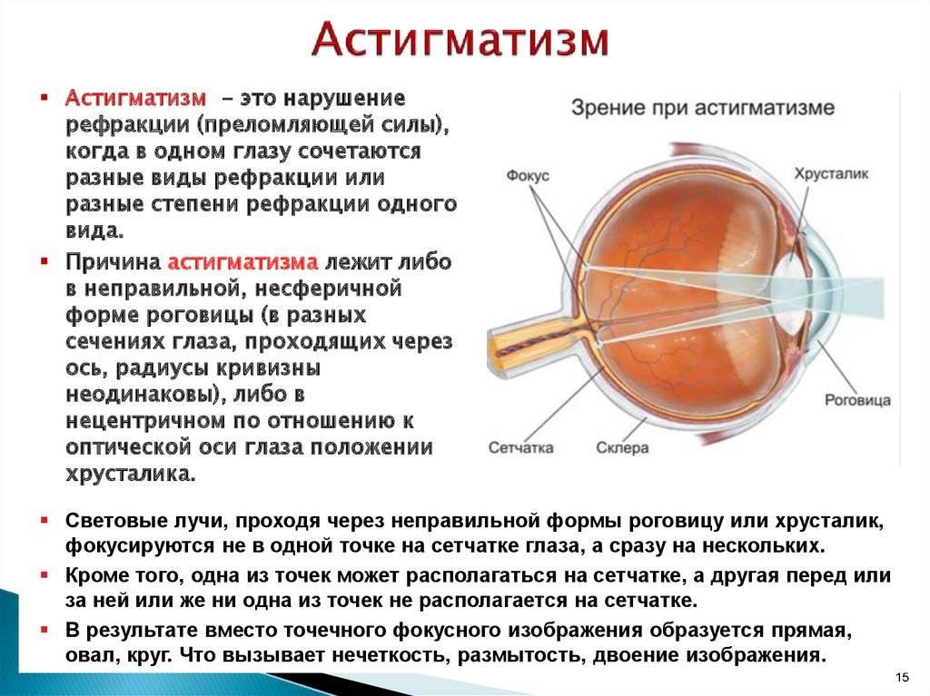 Глазное заболевание астигматизм: лечение - энциклопедия ochkov.net