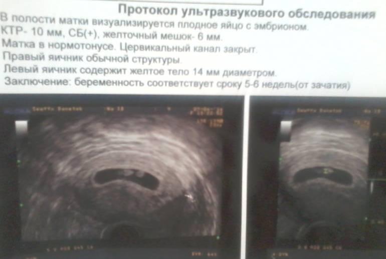 Минимальный срок беременности, когда на узи видно плодное яйцо