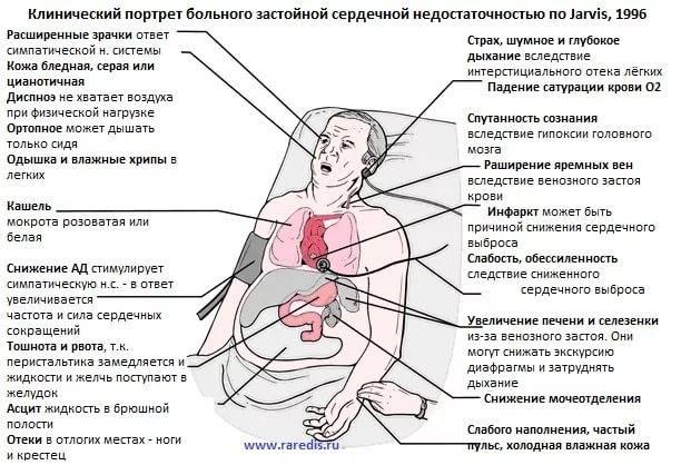 Редкий пульс — что может вызвать данный симптом