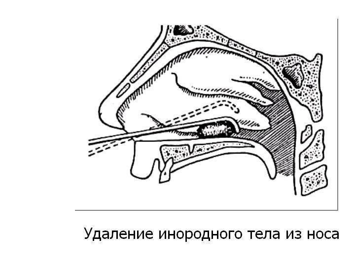 Если ребенок засунул в нос инородное тело: семечку, хлеб, бумагу, как ему помочь дома? - лечим инфекцию