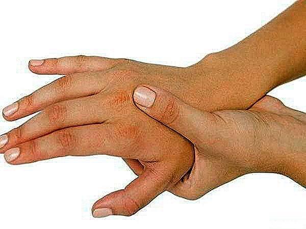 Диагноз «мозаичный синдром дауна»