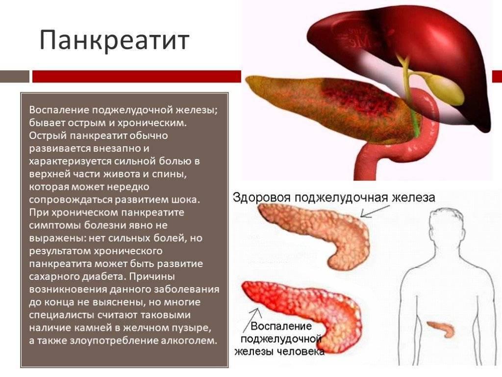 Вкусно иопасно: питание какпричина острого панкреатита удетей