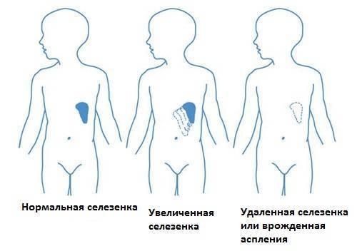 Увеличение печени: причины, симптомы, лечение