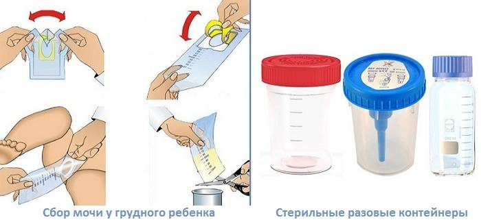 Сколько мочи грудничка нужно для анализа по сулковичу