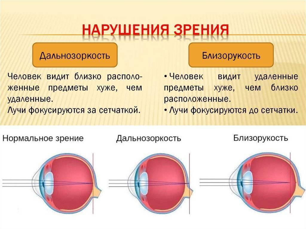 Дальнозоркость у детей 2-5 лет и 6-8 лет, причины, профилактика, лечение